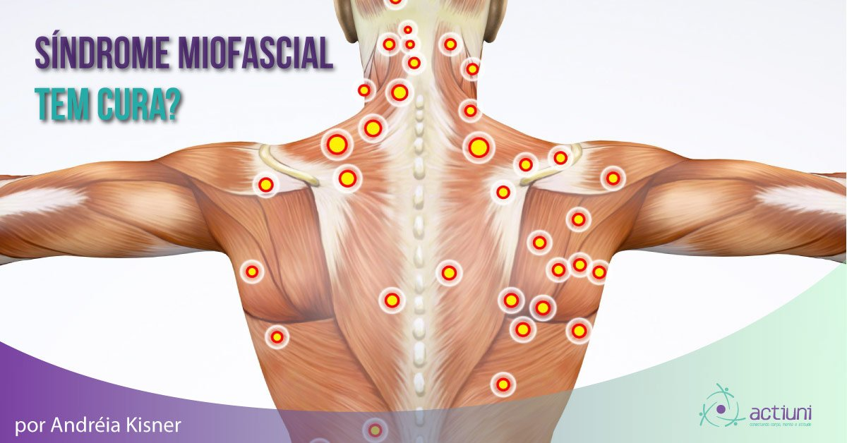 Síndrome Miofascial tem cura?
